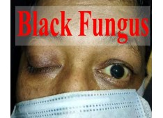 Centre issues guidelines for management of black fungus disease in children below 18 years